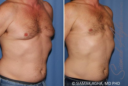 orange-county-male-breast-reduction-patient-9-front-right