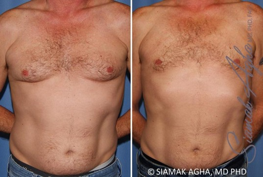 orange-county-male-breast-reduction-patient-9-front