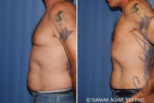 orange-county-male-breast-reduction-patient-9-left