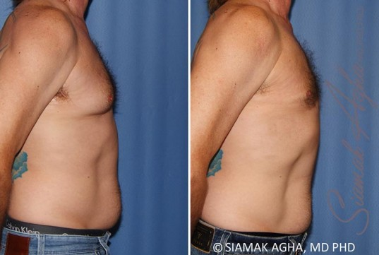 orange-county-male-breast-reduction-patient-9-right