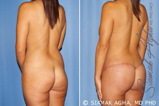 orange-county-mommy-makeover-patient-12-back-left