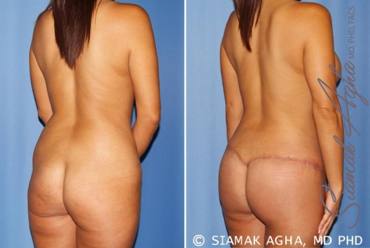 orange-county-mommy-makeover-patient-12-back-right