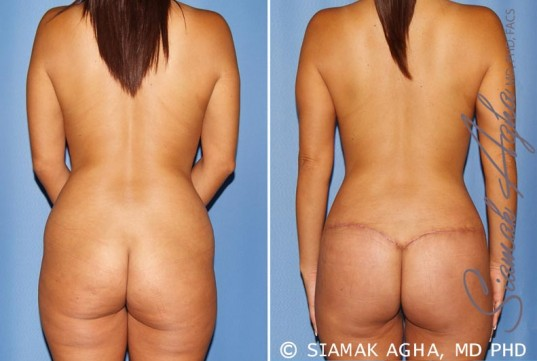 orange-county-mommy-makeover-patient-12-back