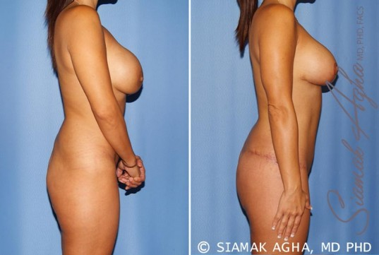 orange-county-mommy-makeover-patient-12-right