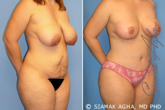 orange-county-mommy-makeover-patient-5-front-right