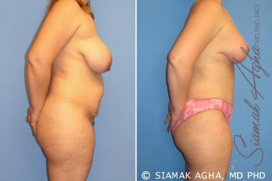 orange-county-mommy-makeover-patient-5-right