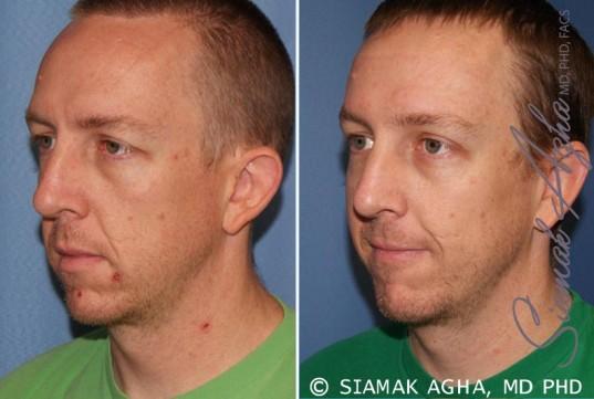 orange-county-otoplasty-patient-1-front-left