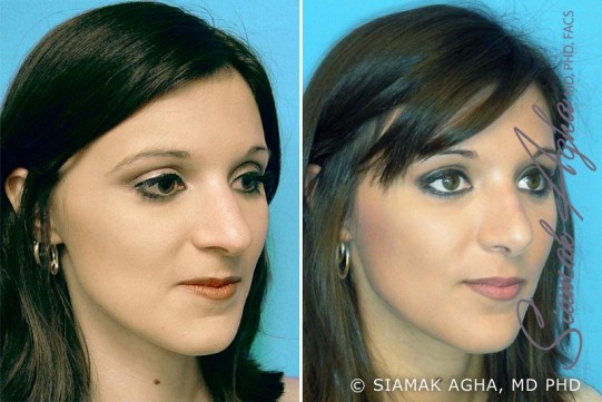 orange-county-rhinoplasty-patient-1-front-right