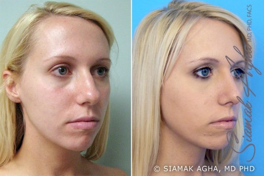 orange-county-rhinoplasty-patient-2-front-right