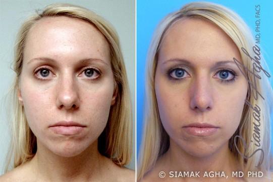 orange-county-rhinoplasty-patient-2-front