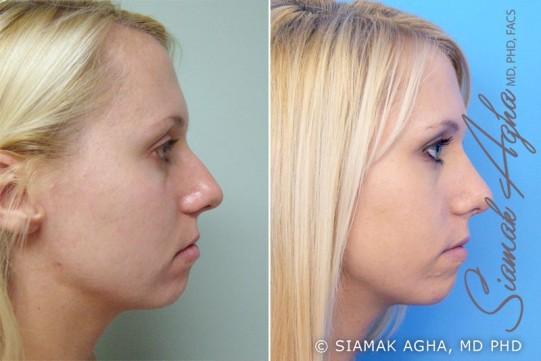 orange-county-rhinoplasty-patient-2-right