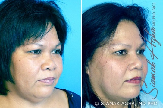 orange-county-rhinoplasty-patient-3-front-right