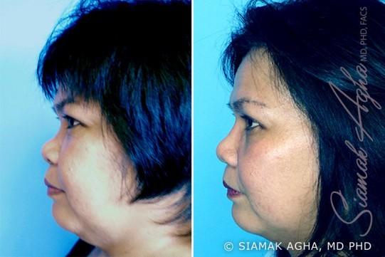orange-county-rhinoplasty-patient-3-left