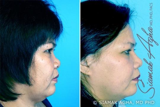 orange-county-rhinoplasty-patient-3-right