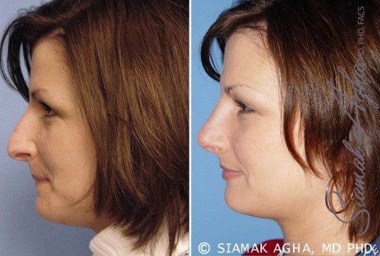 orange-county-rhinoplasty-patient-4-left