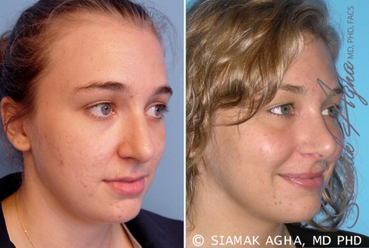 orange-county-rhinoplasty-patient-6-front-right