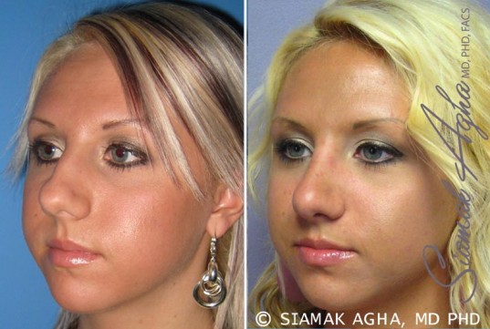 orange-county-rhinoplasty-patient-7-front-left