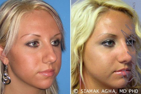 orange-county-rhinoplasty-patient-7-front-right