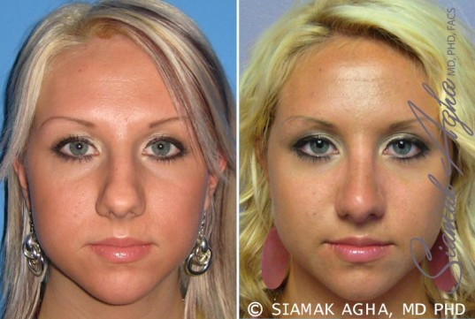 orange-county-rhinoplasty-patient-7-front