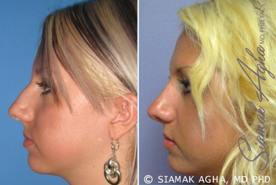 orange-county-rhinoplasty-patient-7-left
