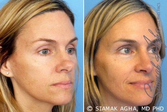 orange-county-rhinoplasty-patient-8-front-right