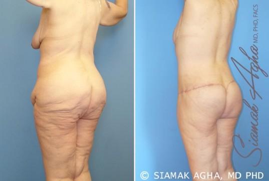orange-county-total-body-lift-patient-10-back-left