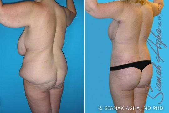 orange-county-total-body-lift-patient-12-back-left