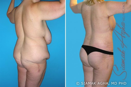 orange-county-total-body-lift-patient-12-back-right