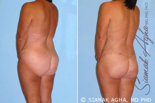 orange-county-total-body-lift-patient-15-back-left