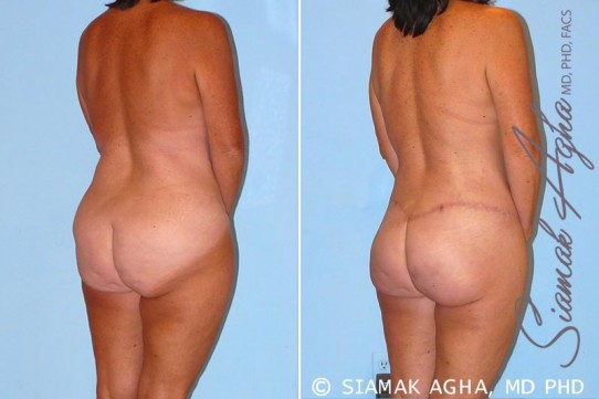 orange-county-total-body-lift-patient-15-back-right