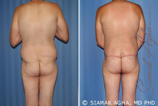 orange-county-total-body-lift-patient-21-back (1)