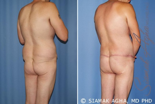 orange-county-total-body-lift-patient-21-back-right (1)