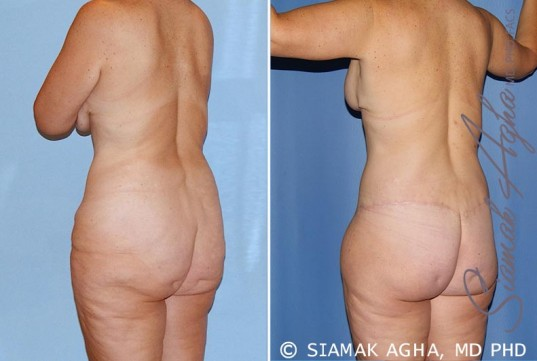 orange-county-total-body-lift-patient-23-back-left (1)