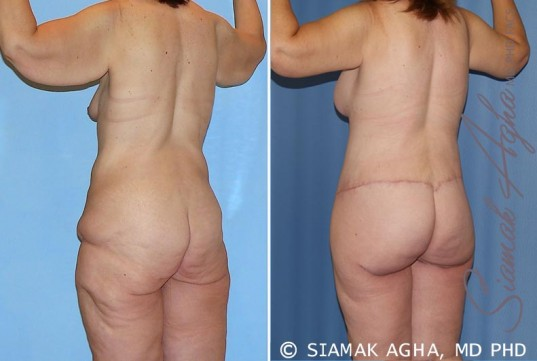 orange-county-total-body-lift-patient-25-back-left
