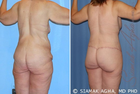 orange-county-total-body-lift-patient-25-back-right