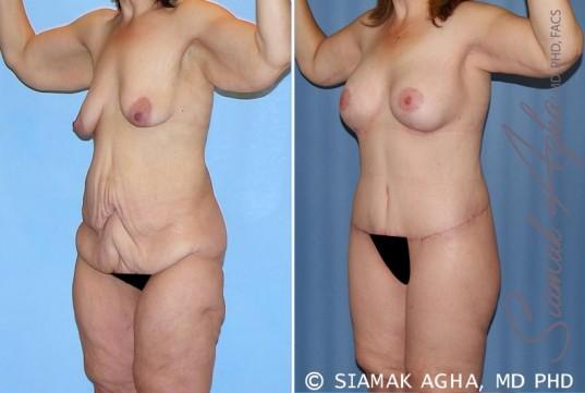 orange-county-total-body-lift-patient-25-front-left