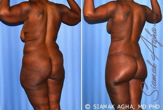 orange-county-total-body-lift-patient-27-back-left