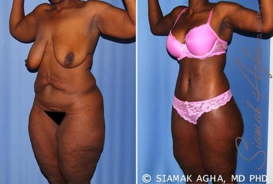 orange-county-total-body-lift-patient-27-front-left-1