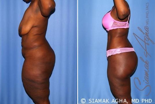orange-county-total-body-lift-patient-27-left-1