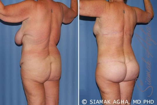 orange-county-total-body-lift-patient-28-back-left