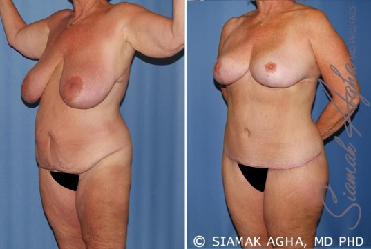 orange-county-total-body-lift-patient-28-front-left