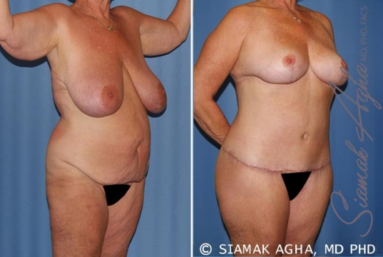 orange-county-total-body-lift-patient-28-front-right