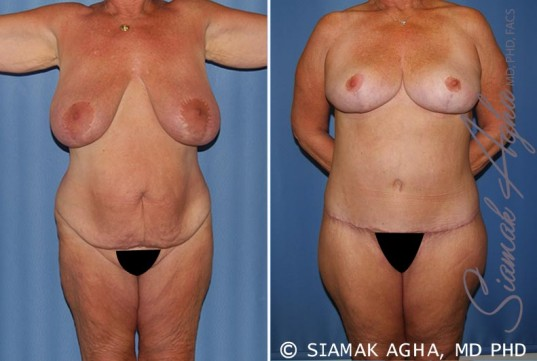 orange-county-total-body-lift-patient-28-front