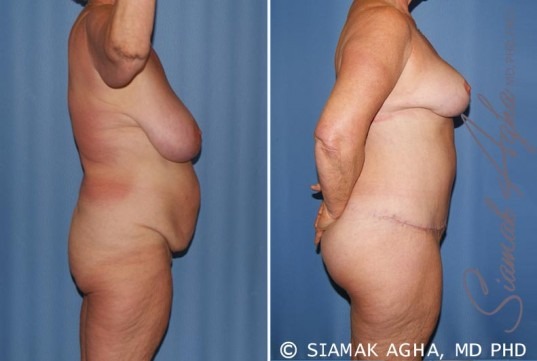 orange-county-total-body-lift-patient-28-right