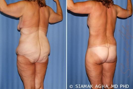 orange-county-total-body-lift-patient-31-back-left