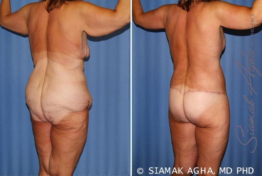 orange-county-total-body-lift-patient-31-back-right