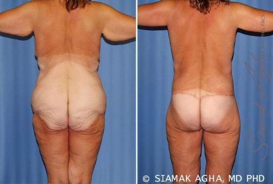 orange-county-total-body-lift-patient-31-back