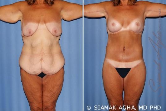 orange-county-total-body-lift-patient-31-front
