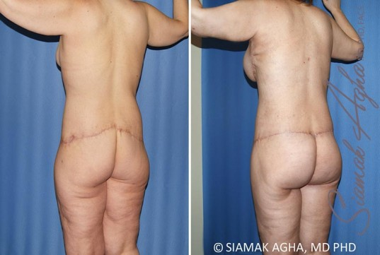 orange-county-total-body-lift-patient-35-back-left (2)