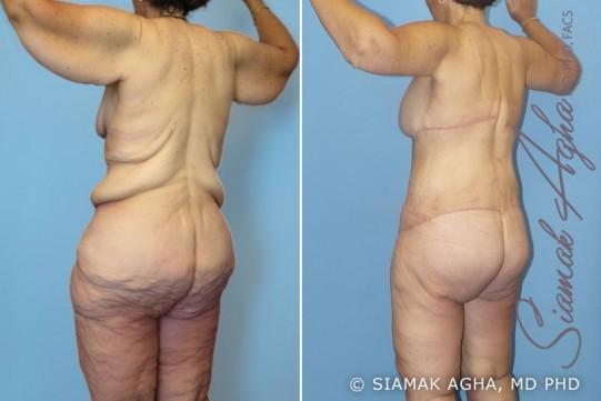 orange-county-total-body-lift-patient-7-back-left
